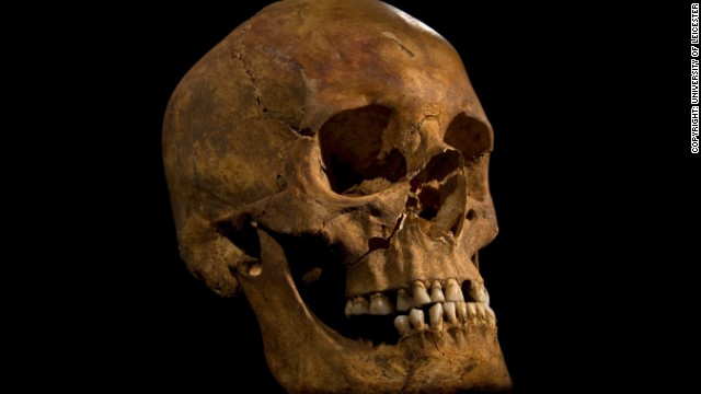 Archaeologists say the man they found appears to have met a violent death. The skull shows a wound to the right cheek.