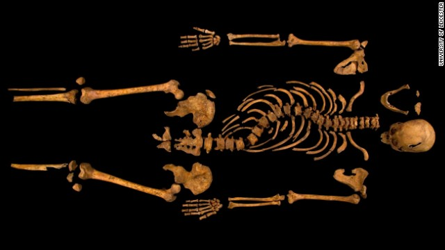 The complete skeleton showing the curve of the spine. Supporters of the infamous king, including members of the Richard III Society, hoped the discovery would force academics to rewrite history, which they say has been tainted by exaggerations and false claims.