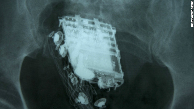 A mobile phone and a hands free kit are seen in an X-ray of a Sri Lankan prisoner.