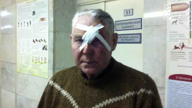 Dan de altas a heridos por el meteorito en Rusia