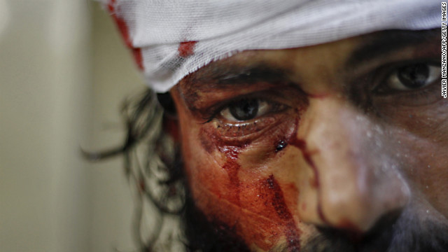 A man is treated for wounds after a government jet attacked the Karm al-Aser neighborhood in eastern Aleppo on October 31.