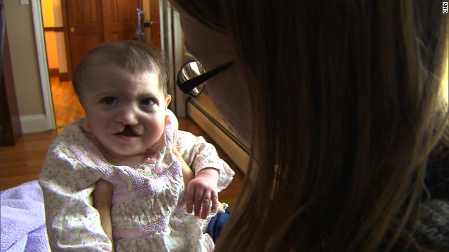 Baby S. was 8 months old in February. Along with her cleft lip and palate, and a misshapen ear, she has severe brain and heart problems. She'll need several risky surgeries to survive.