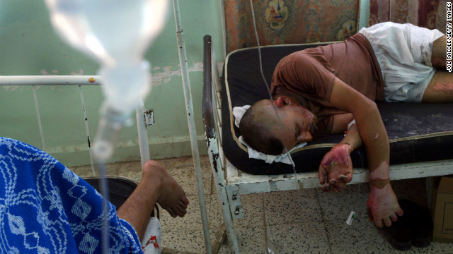 Iraqi national guardsman Ridha Abdulkarim lies in a hospital bed after a car bomb detonated at a checkpoint in Baquba on August 3, 2004. The bomb killed six guardsmen and wounded six others, Iraqi authorities said.