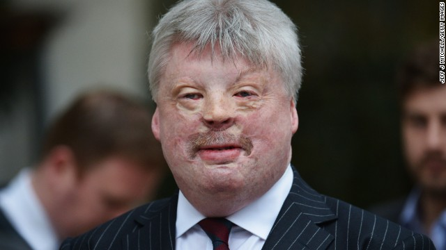 Falklands War veteran Simon Weston attends Thatcher's funeral.