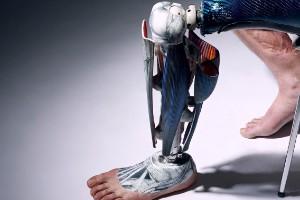 El arte de las prótesis
