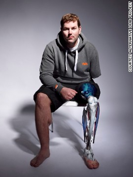 ALP now creates prostheses for a wide range of clients, including British ex-serviceman Ryan Seary, who lost his left hand and lower left leg in Helmand Province, Afghanistan. He now boasts a striking custom limb, featuring anatomically correct muscles and bones.