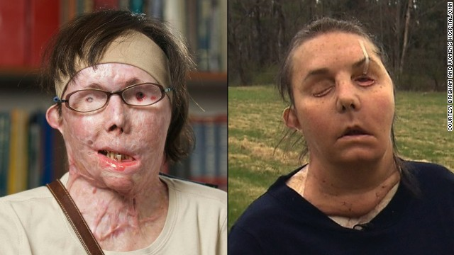 After Carmen Tarleton's estranged husband doused her with industrial-strength lye, doctors saved her life with a medically induced coma and more than 50 surgeries. She received a full facial transplant in February.