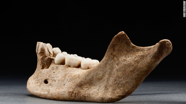 "Historians refer to this dark period of the colony as ""the starving time,"" a period during which almost 80% of the colonists died. This 2012 photo shows several sharp cuts to the bottom of a mandible."