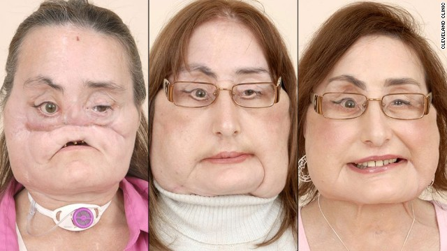 Photos: Face transplant patients