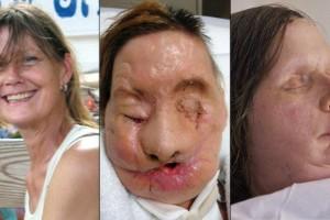 Pacientes de transplantes de cara