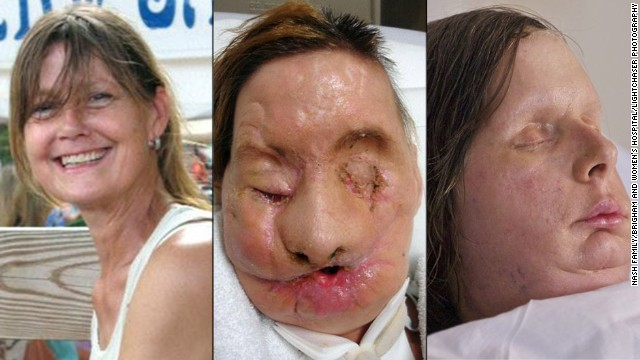 Charla Nash was mauled by a friend's chimpanzee and underwent a face transplant in May 2011 at Brigham and Women's Hospital in Boston.