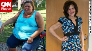 Woman loses 276 pounds