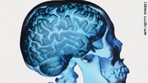 Human brain implants