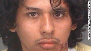 Bryan Zuniga suffered wounds to the face, arm and armpit area in the gator attack.