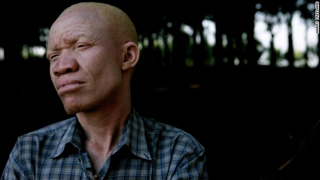In a country where most albinos live their life in the shadows, Torner has stepped out to debunk the misconceptions in the hope of creating a more inclusive society.