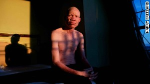 Albino activist fights witchcraft murders