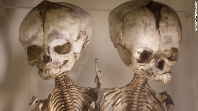 This London museum houses nearly 5,000 medical oddities including various random objects pulled from human bodies in the past 150 years.