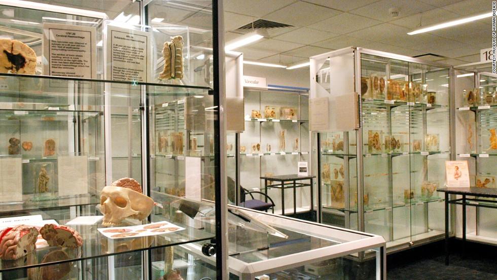 Museo de las Enfermedades Humanas, Australia