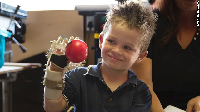 South Africa's Robohand 3-D prints cheap mechanical prosthetic hands, arms and fingers.