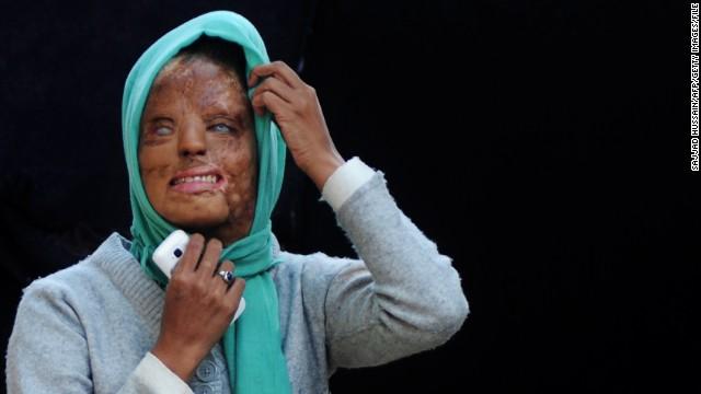 Mujer víctima de un ataque con ácido en India busca justicia
