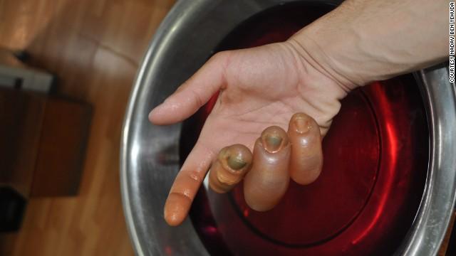 Ben Yehuda's hand after frostbite set in.