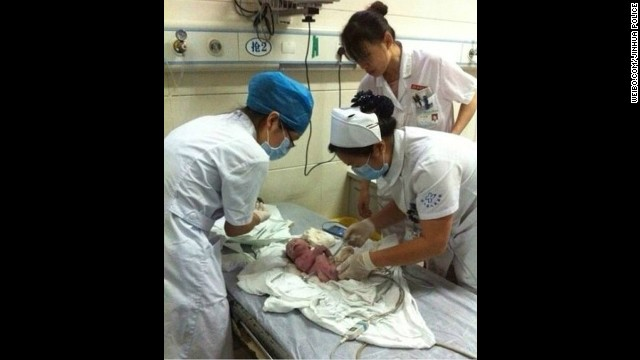 Nurses attend to the infant inside a local hospital.