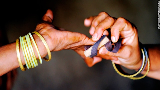 <strong>Leprosy remains a scourge:</strong> The WHO says more than 200,000 cases of leprosy are diagnosed each year. <a href='http://www.cnn.com/changethelist'>Vote here.</a>