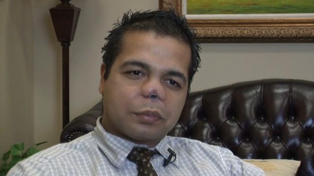 Un hombre se somete a una cirugía plástica de nariz y termina mutilado