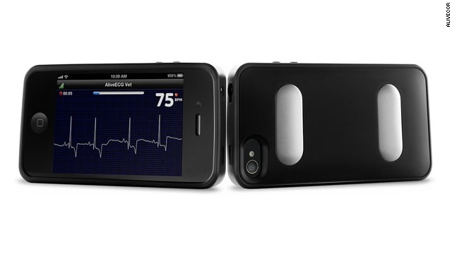 It's an iPhone case and a portable EKG. Users can measure their heart rate by placing their fingers on the metal leads on the back of the case. The monitor is cleared by the Food and Drug Administration for sale to doctors and patients with a prescription.