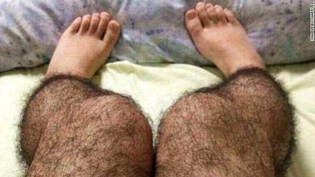 hairy legs woman: