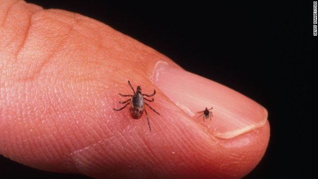 Ticks could be beneficial for patients whose vessels are in danger of closing up from blood clots. A potential drug is being developed using ticks' saliva that is 70 times more potent than the natural blood-thinning agent found in a human body.