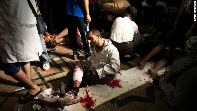 A wounded Morsy supporter lies on the floor of a field hospital in Cairo on July 27. Thousands of Morsy supporters gathered Saturday in the Nasr City neighborhood despite dozens of deaths the night before and veiled threats from the military.