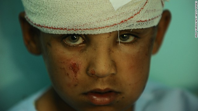 A wounded Afghan boy receives treatment at a local hospital after Taliban attack in Farah province on April 4, 2013.