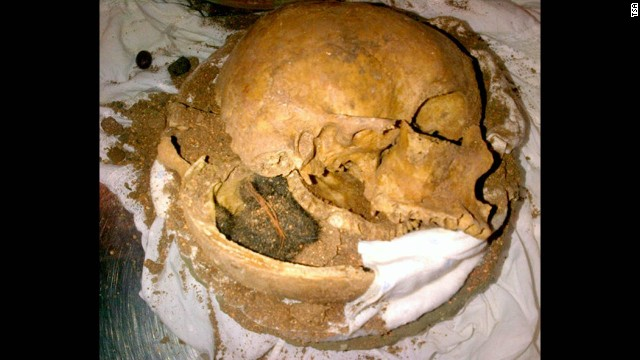 TSA agents at Fort Lauderdale-Hollywood International Airport discovered human skull fragments in a clay pot in checked luggage. The owners of the bag said they did not know there were skull fragments in the pots.