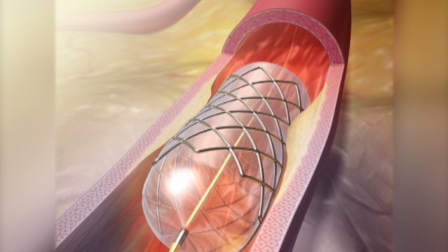 how to clear blocked arteries without surgery