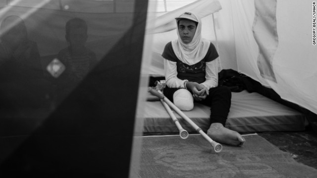 12-year-old Iman lost her leg during an attack in the Golan Heights.