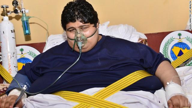 El rey de Arabia Saudita interviene para ayudar a un hombre de más de 600 kilos
