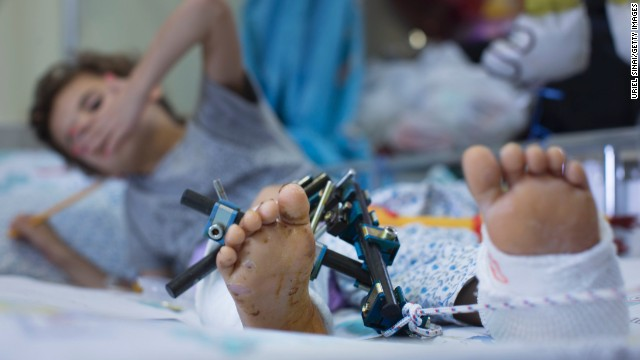 A wounded Syrian child is treated at the Israeli Ziv hospital on Wednesday, August 28, in the northern town of Safed, Israel. About 140 wounded Syrians, who have been fighting across the border from Israel, have been treated in Israeli hospitals since the beginning of the Syrian Civil war.