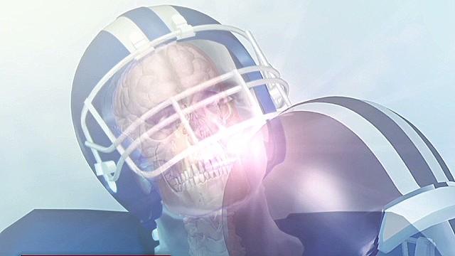 La NFL llega a un acuerdo con 4.000 jugadores tras demandas por lesiones