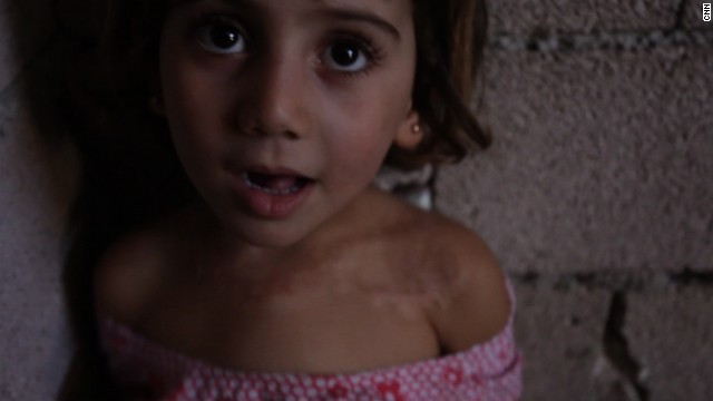 The U.N. estimates 4.25 million people are homeless inside Syria. This 4-year-old girl carries a physical scar of the ongoing conflict -- after being burned during shelling.