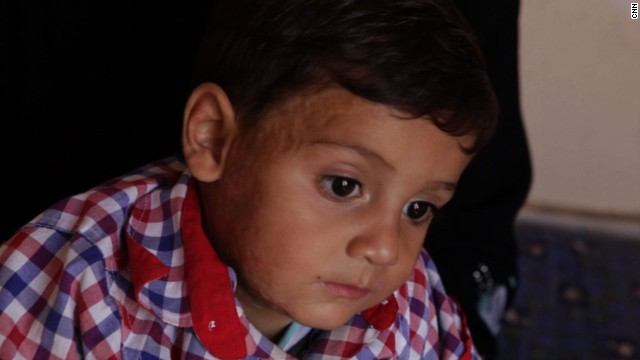 This four-year-old boy suffered from burns in an attack.