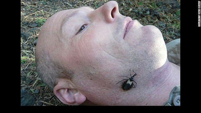 "This bug can cause the painful Chagas Disease, which supposedly killed Charles Darwin. Here, virologist and the writer of this article Dr. Mike Leahy lets the dreaded ""assassin bug"" roam free on his face."