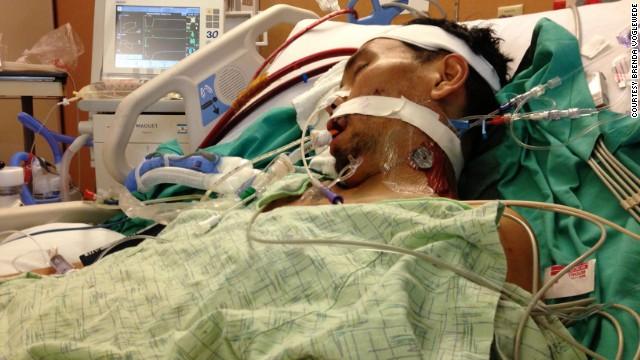 Maratonista vive sin respirar durante un mes