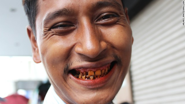 A man shows off his stained teeth, dyed red from years of chewing betel quids, potent parcels of areca nuts, lime and tobacco wrapped in a betel leaf. They give users a buzz when they're chewed but are also known to cause oral cancer.