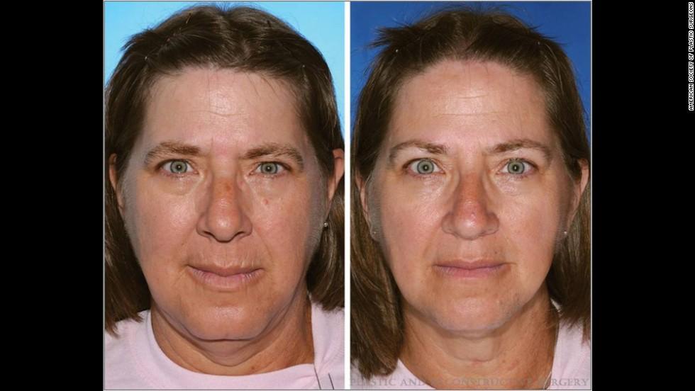 Los efectos de fumar vistos en gemelos