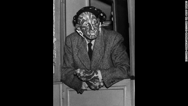 "English freak and sideshow performer Horace Ridler exhibited himself as ""The Great Omi"" or ""The Zebra Man."" Ridler died in 1969."