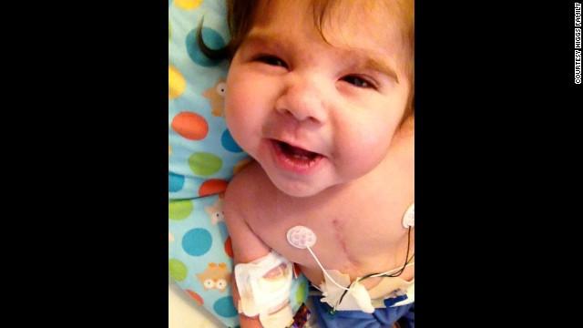 Disabled baby denied heart transplant - CNN com