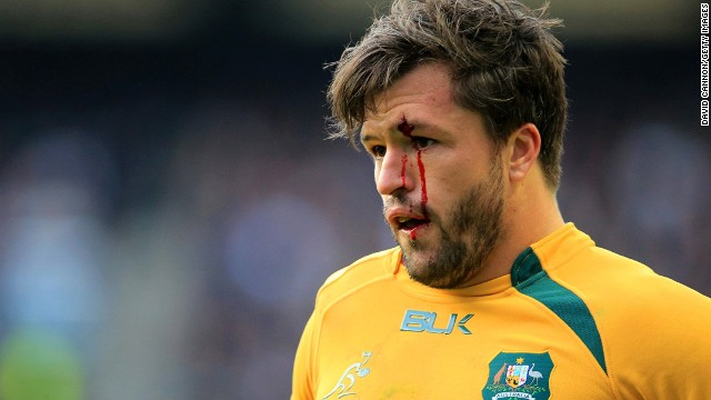 Adam Ashley Cooper is among the six Australian internationals forced to miss this weekend's game with Scotland.