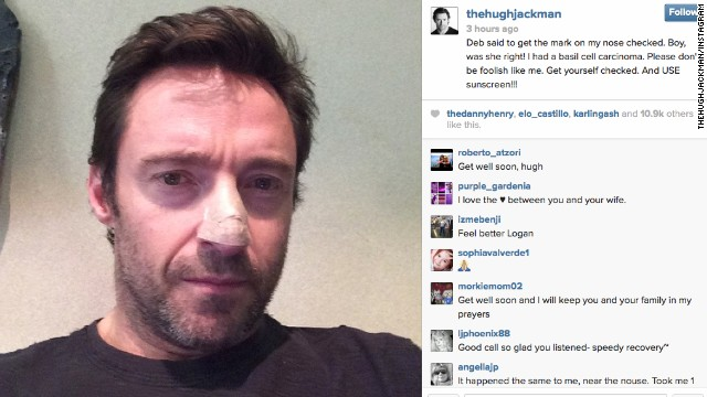 Hugh Jackman posted a picture to Instagram showing his nose bandaged after his doctor found and removed a cancerous growth. He's not the only celebrity that has dealt with cancer...