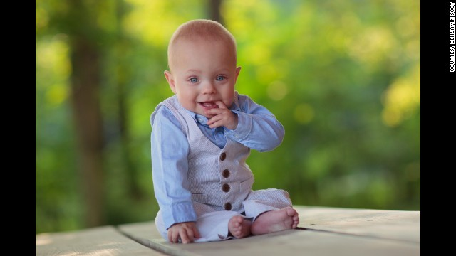 Benjamin Miller tells CNN that his 16-month-old son is thriving and on track developmentally with his age group.